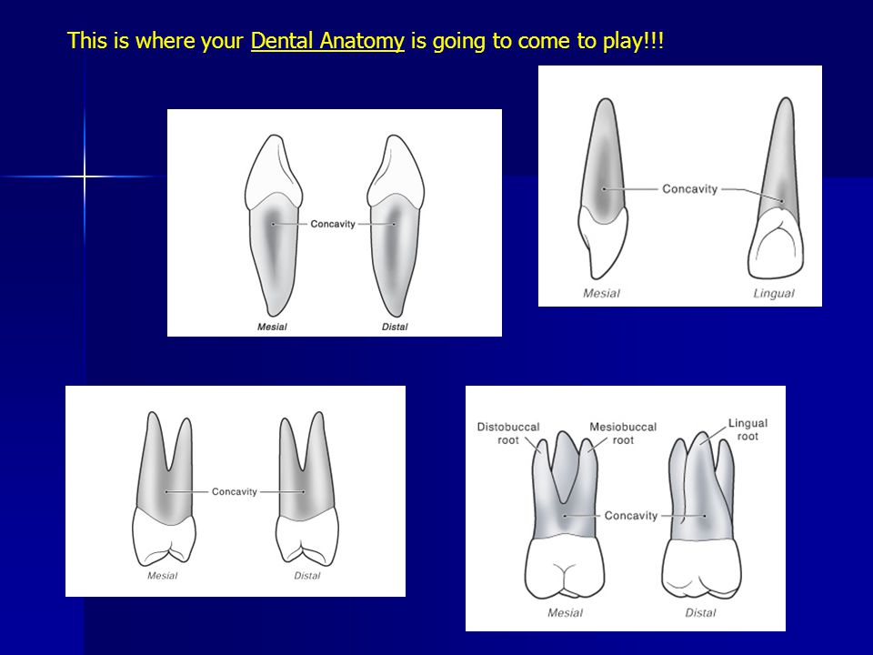 This is where your Dental Anatomy is going to come to play!!!