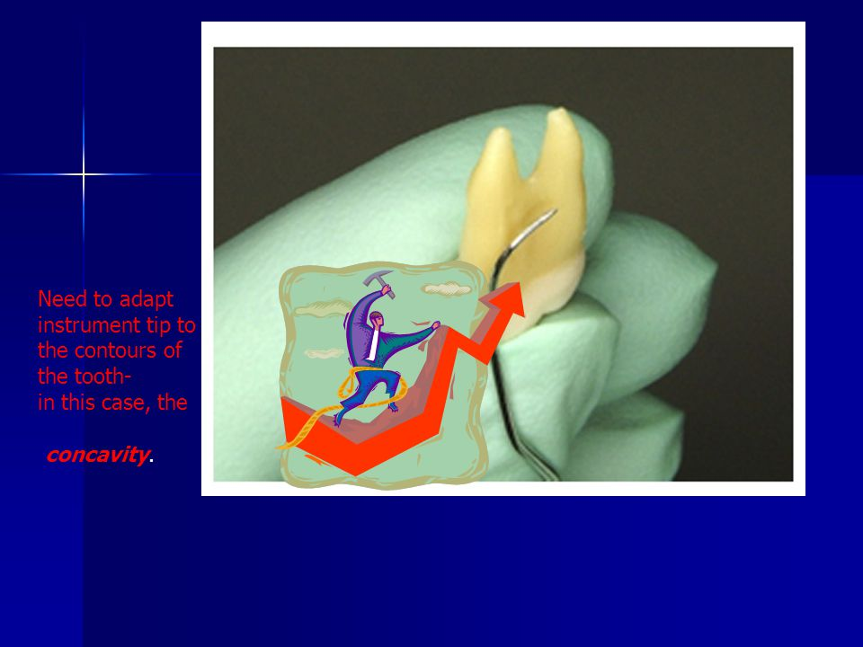 Need to adapt instrument tip to the contours of the tooth-
