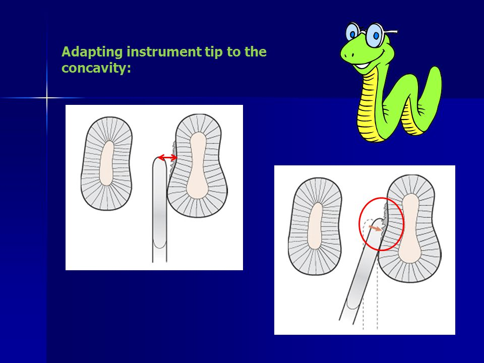 Adapting instrument tip to the concavity:
