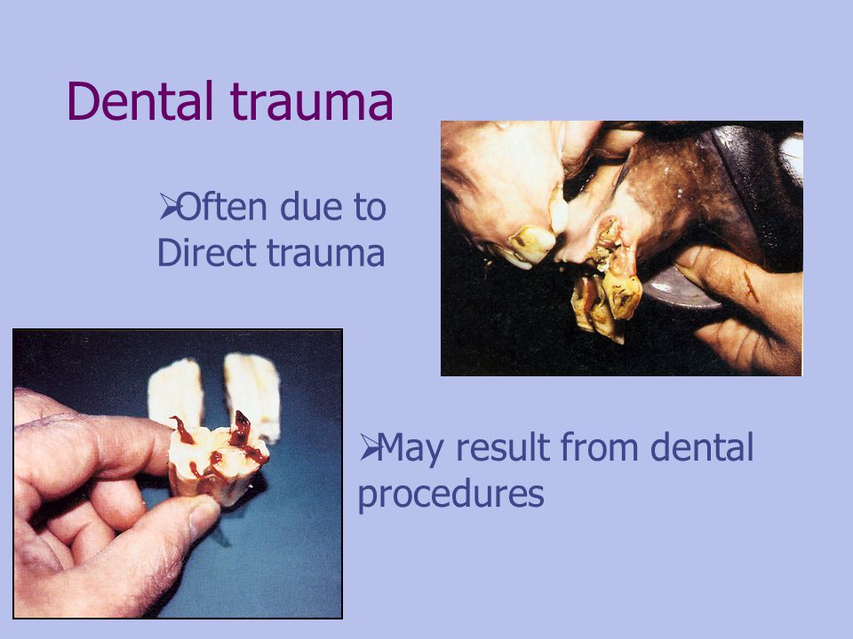 Dental trauma Often due to Direct trauma May result from dental