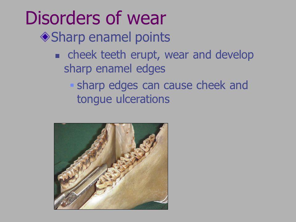 Disorders of wear Sharp enamel points