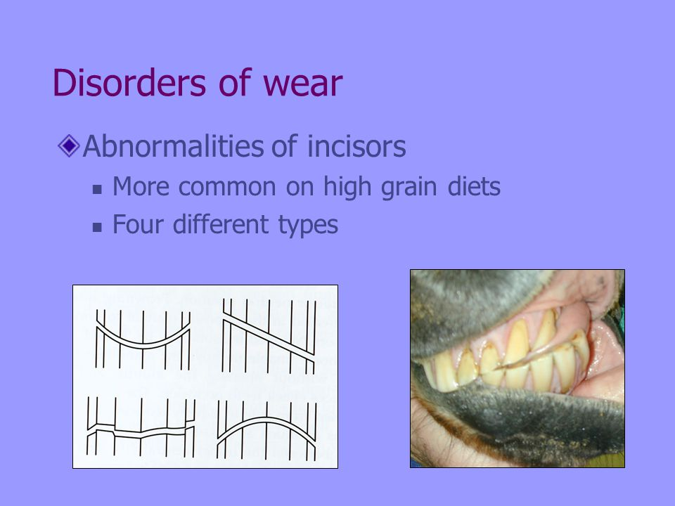 Disorders of wear Abnormalities of incisors