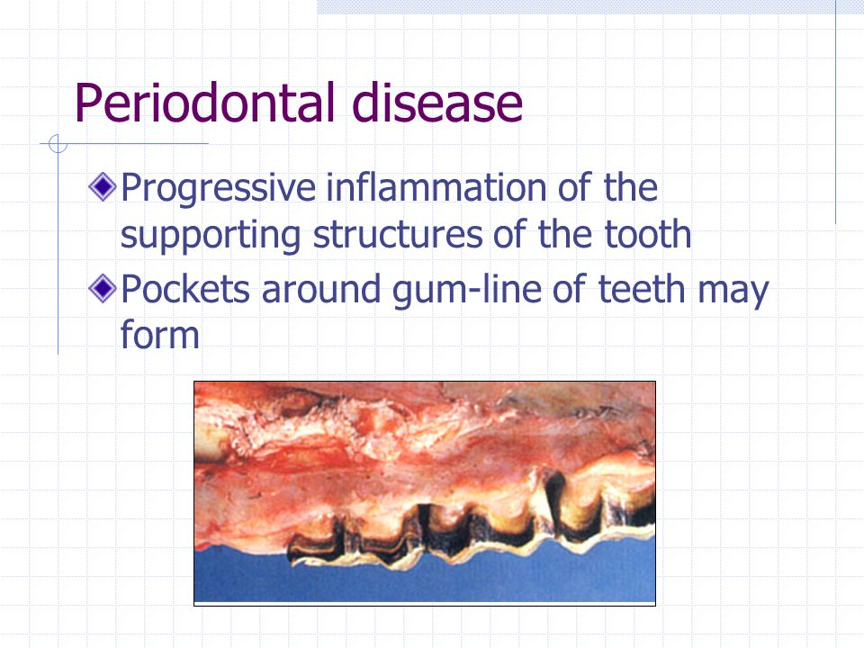 Periodontal disease Progressive inflammation of the supporting structures of the tooth.