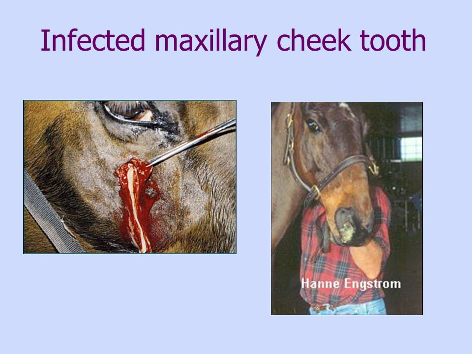 Infected maxillary cheek tooth