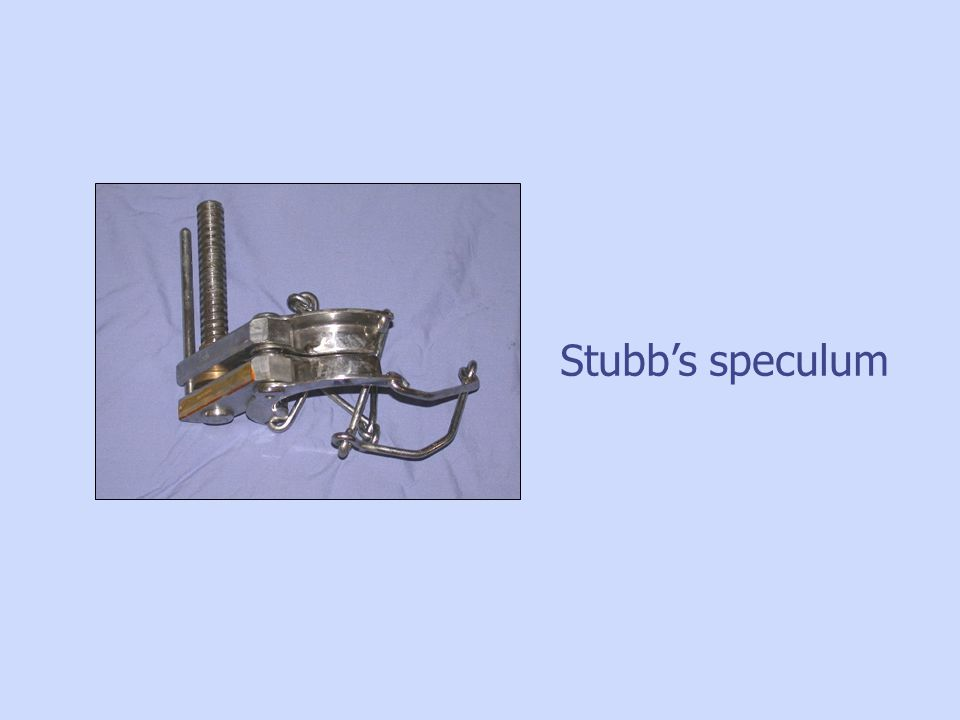 Stubb's speculum