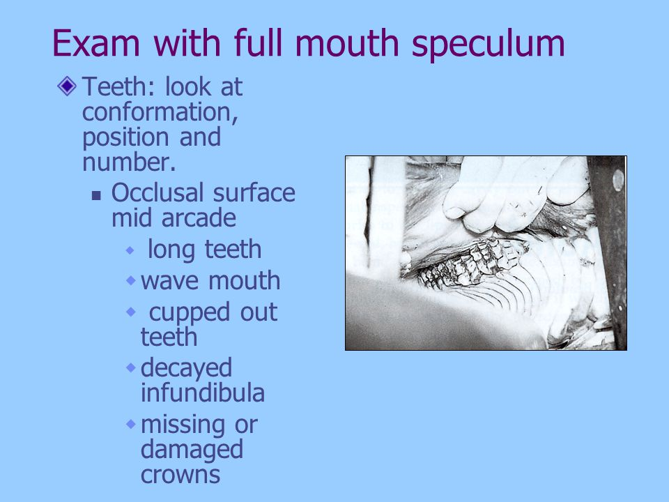 Exam with full mouth speculum