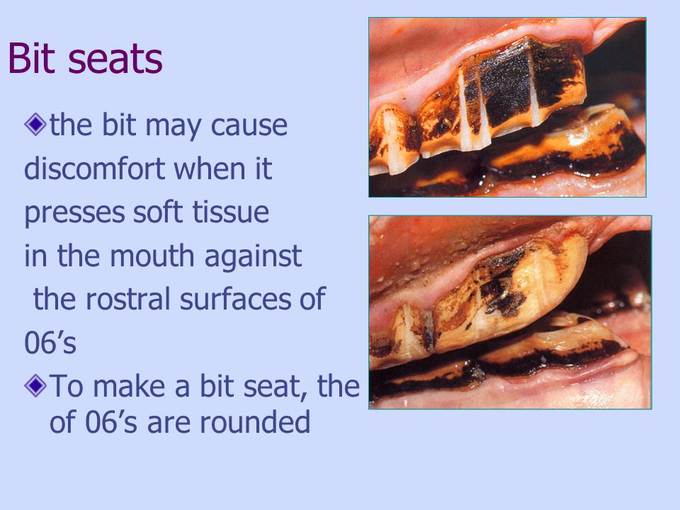 Bit seats the bit may cause discomfort when it presses soft tissue