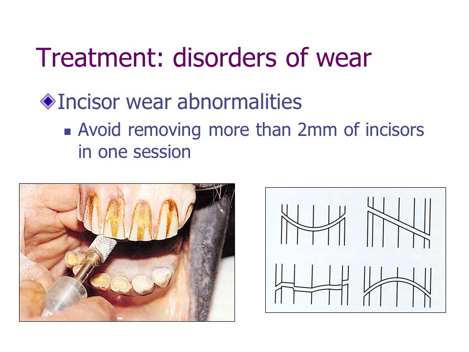 Treatment: disorders of wear