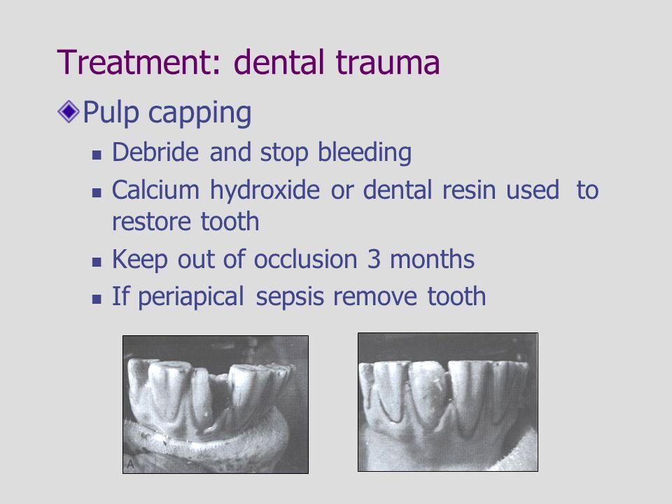 Treatment: dental trauma