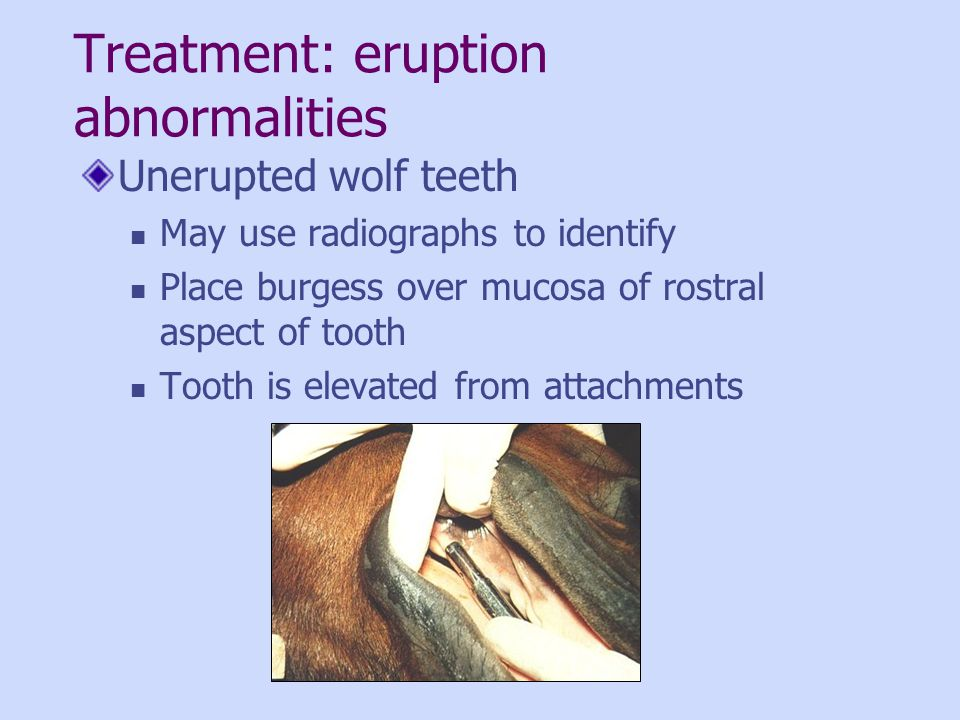 Treatment: eruption abnormalities