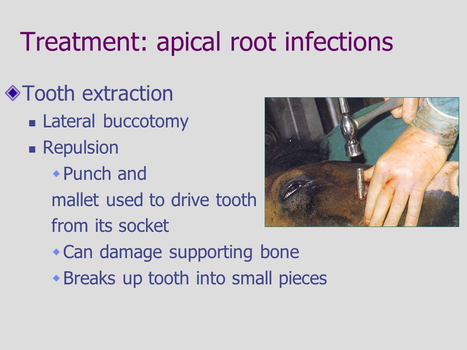 Treatment: apical root infections