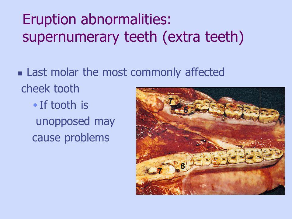 Eruption abnormalities: supernumerary teeth (extra teeth)