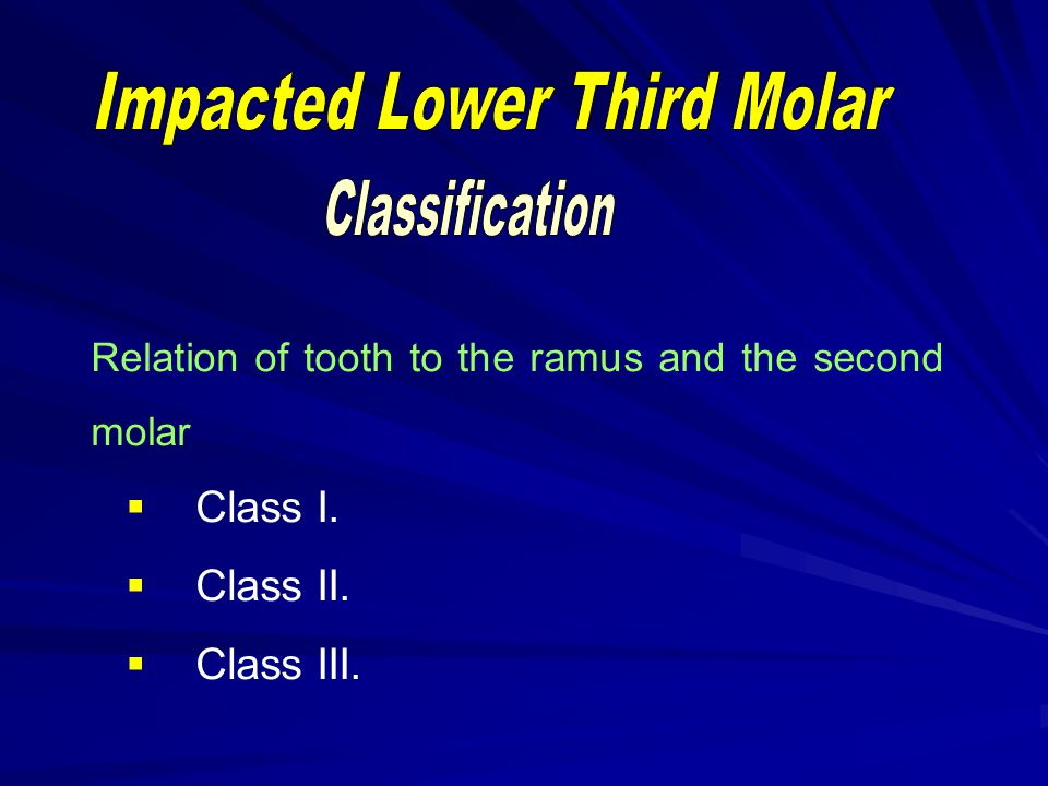 Impacted Lower Third Molar