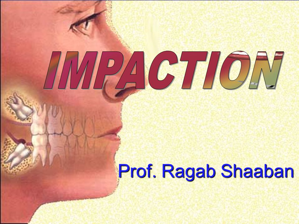 IMPACTION Prof. Ragab Shaaban