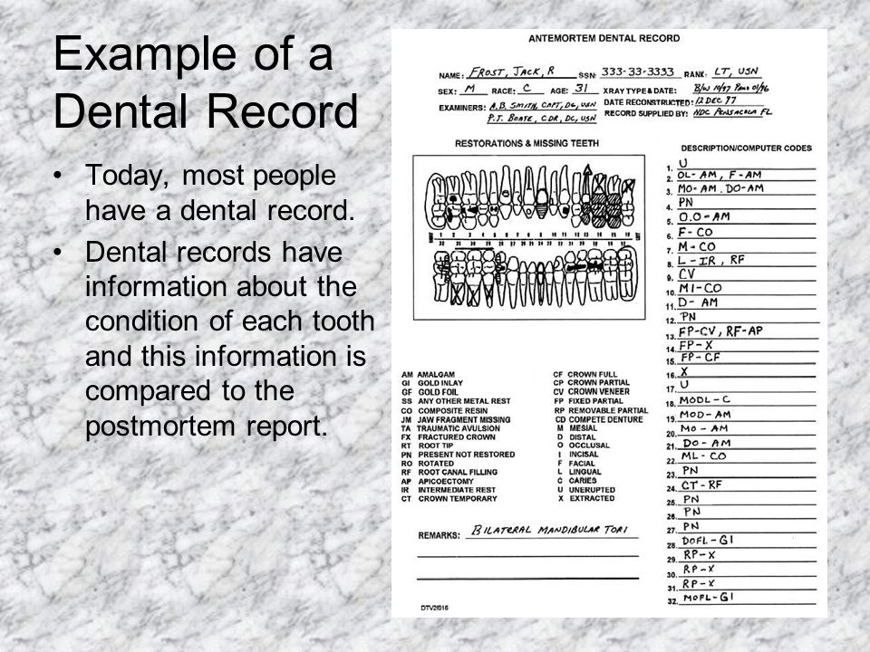 Example of a Dental Record