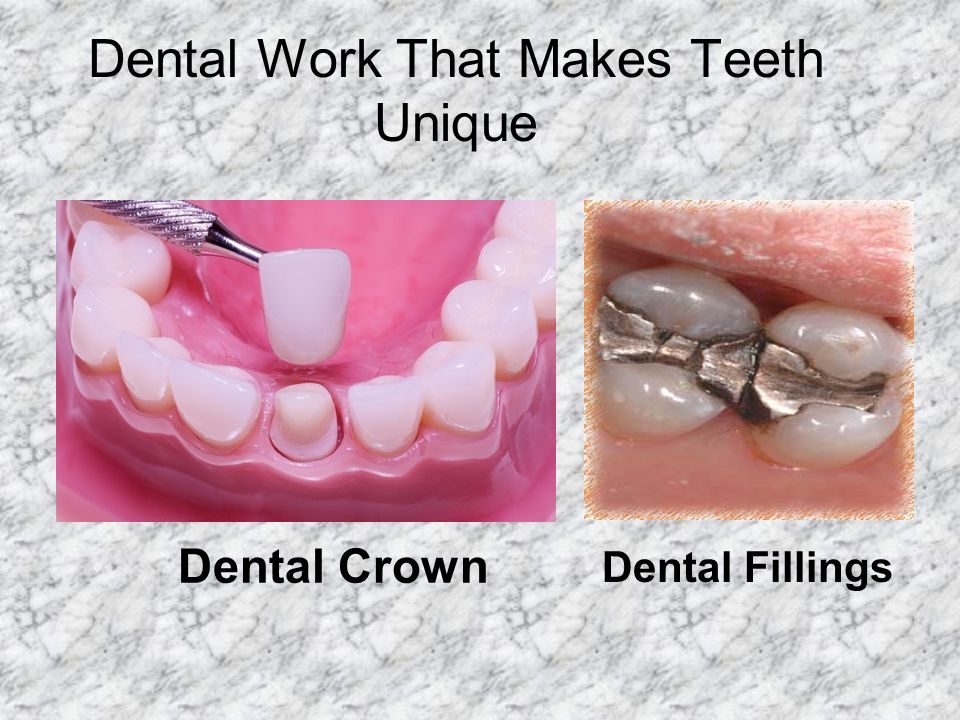 Dental Work That Makes Teeth Unique