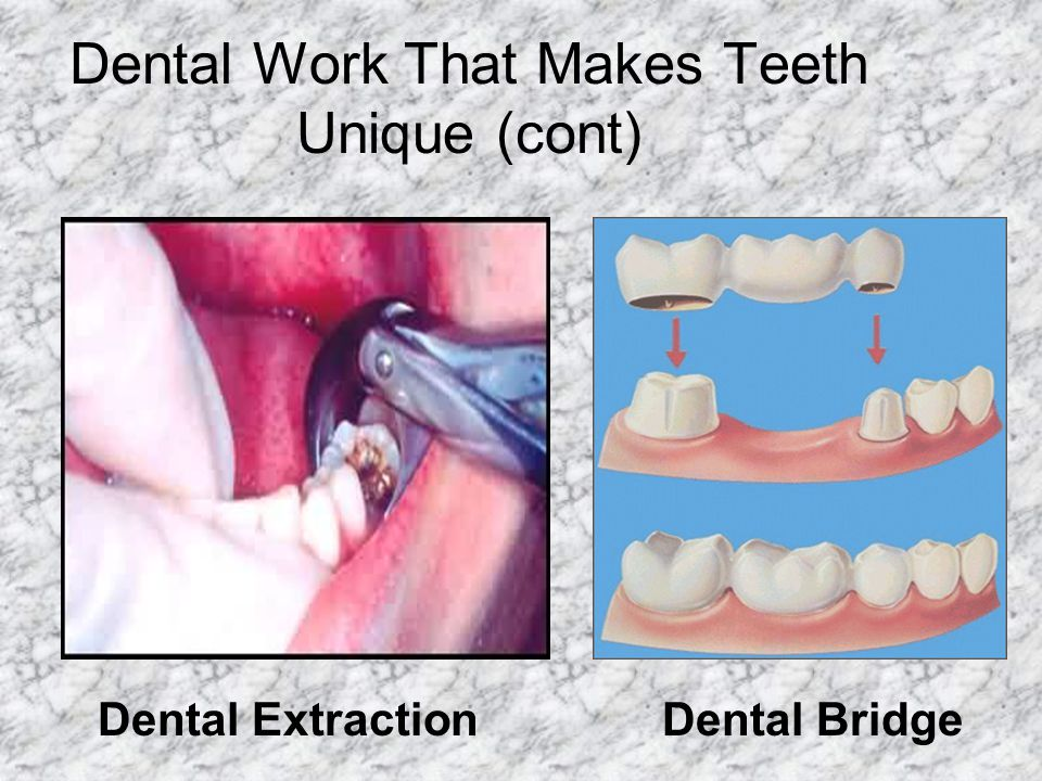 Dental Work That Makes Teeth Unique (cont)