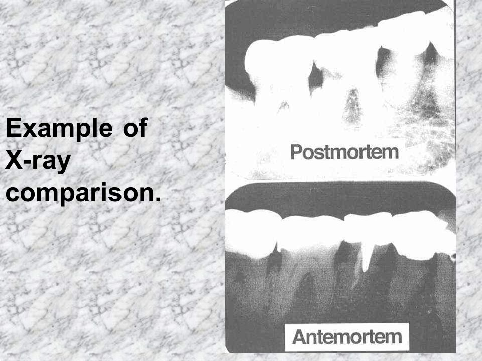 Example of X-ray comparison.