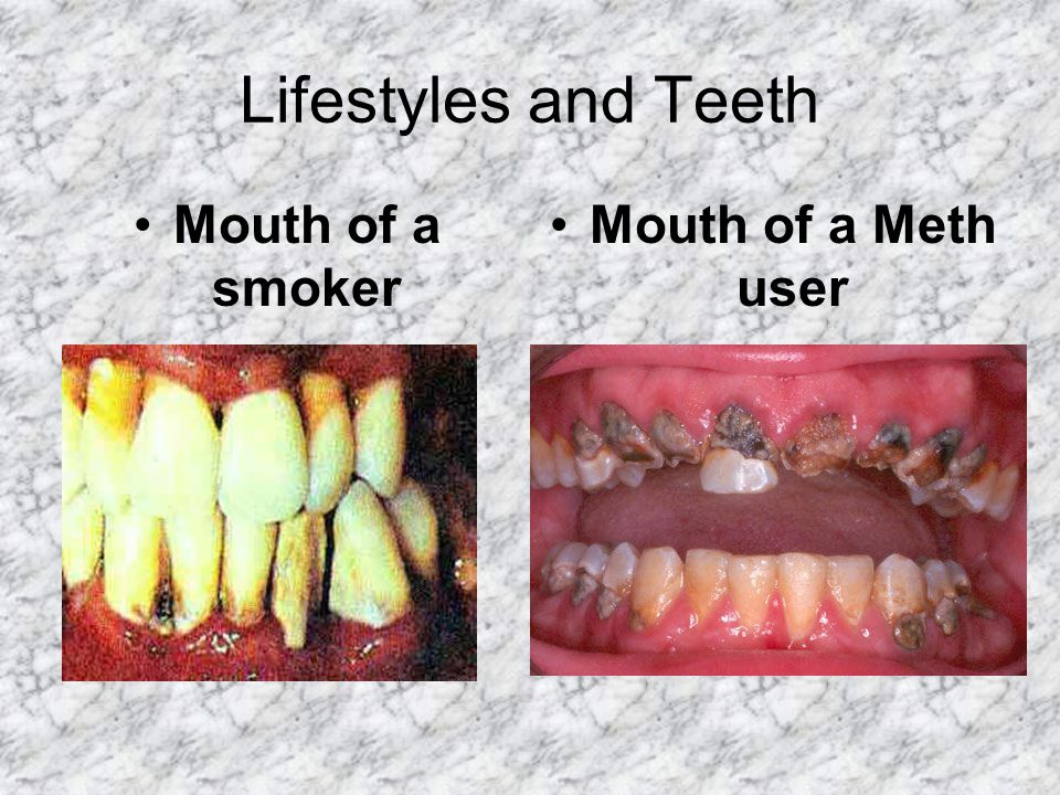 Lifestyles and Teeth Mouth of a smoker Mouth of a Meth user