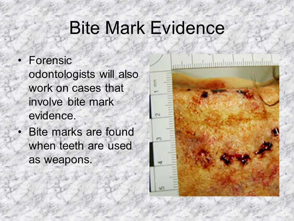 Bite Mark Evidence Forensic odontologists will also work on cases that involve bite mark evidence.