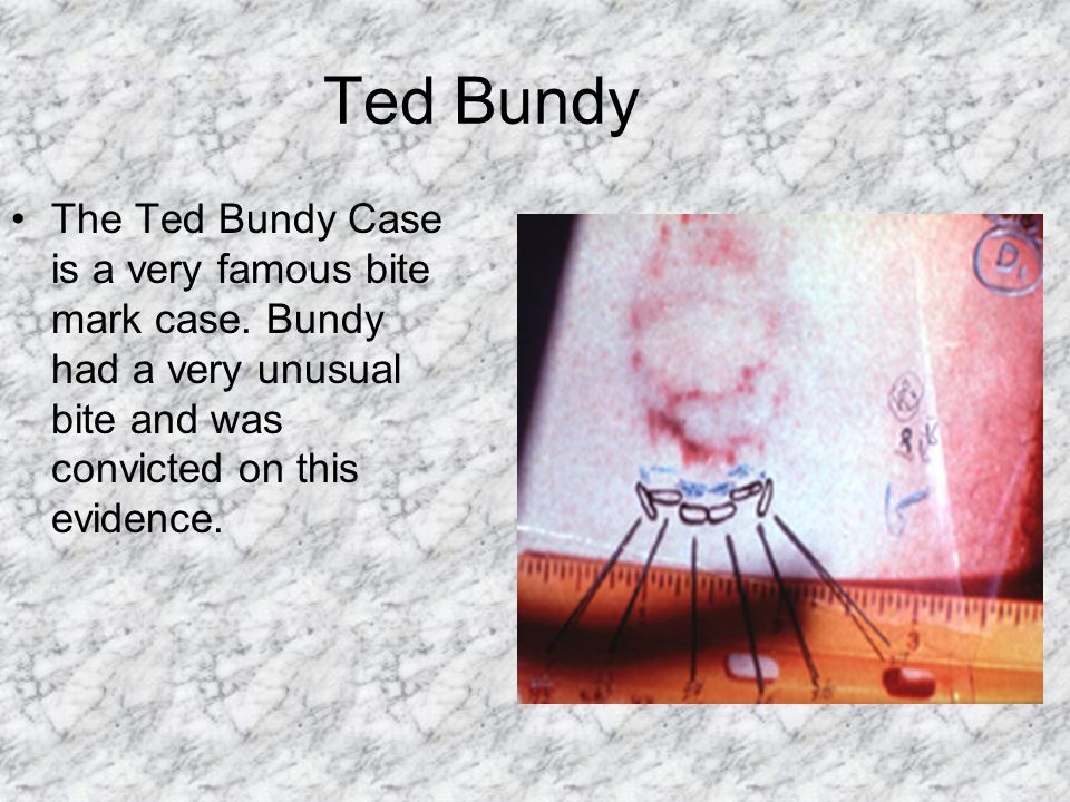 Ted Bundy The Ted Bundy Case is a very famous bite mark case.