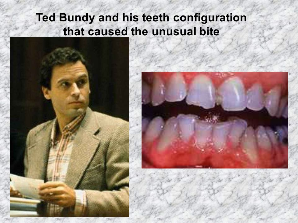 Ted Bundy and his teeth configuration that caused the unusual bite