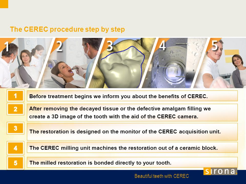 The CEREC procedure step by step