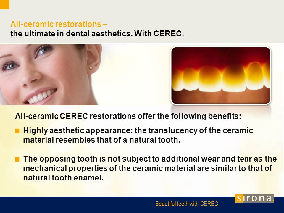 All-ceramic restorations –
