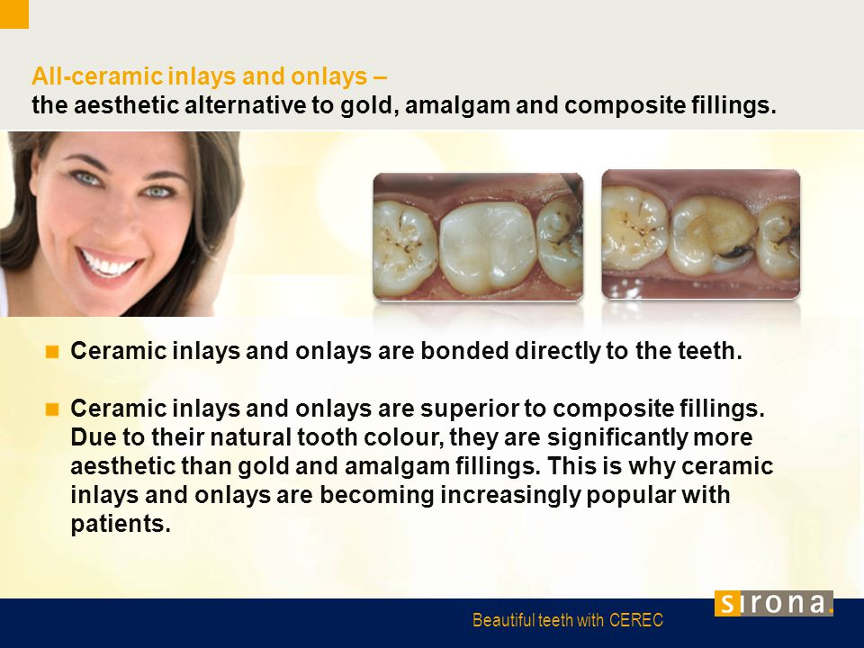 Ceramic inlays and onlays are bonded directly to the teeth.