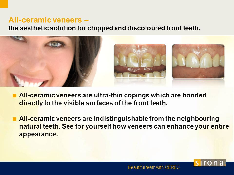 All-ceramic veneers – the aesthetic solution for chipped and discoloured front teeth.