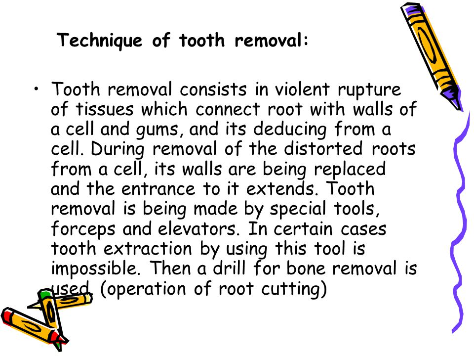 Technique of tooth removal: