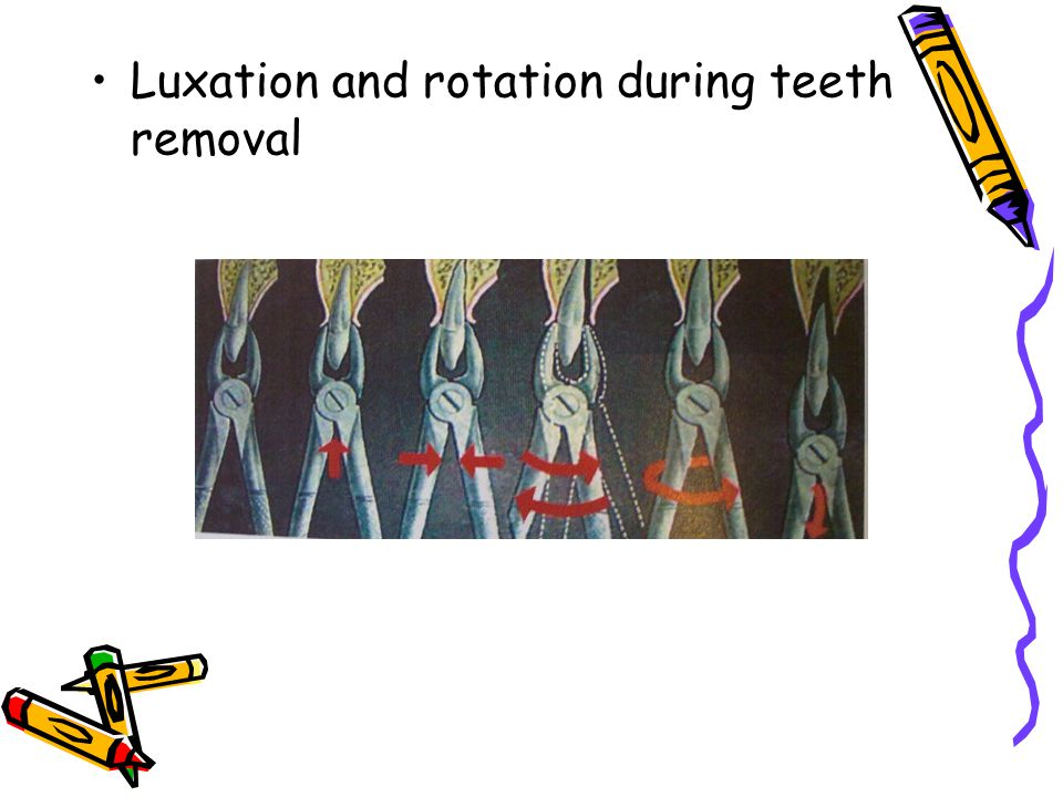 Luxation and rotation during teeth removal