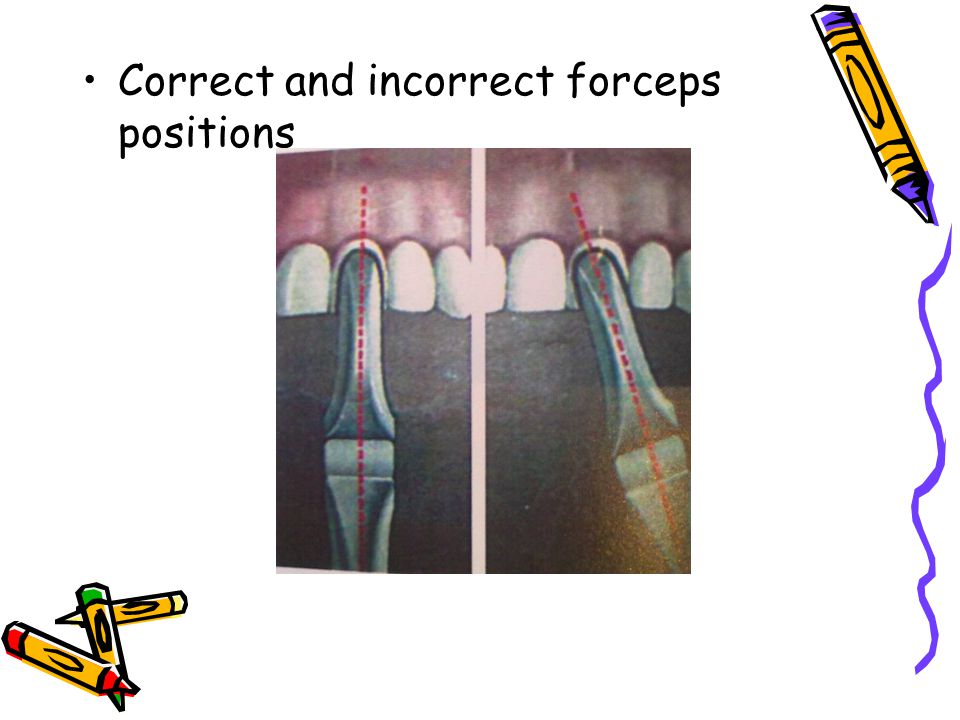 Correct and incorrect forceps positions