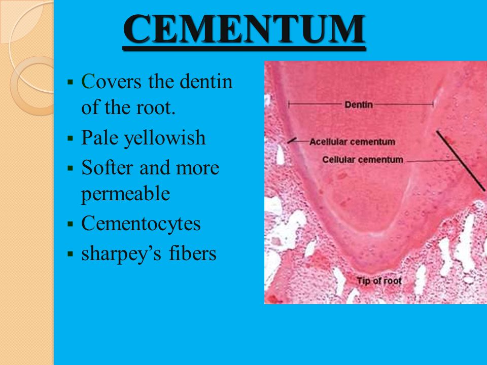 CEMENTUM Covers the dentin of the root. Pale yellowish