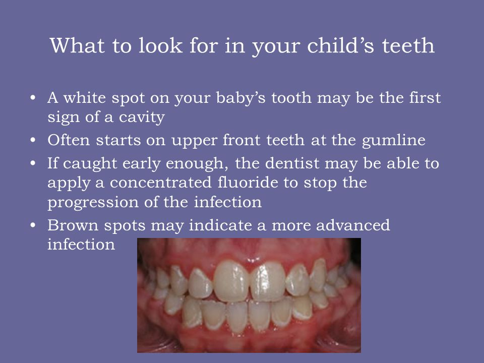 What to look for in your child's teeth