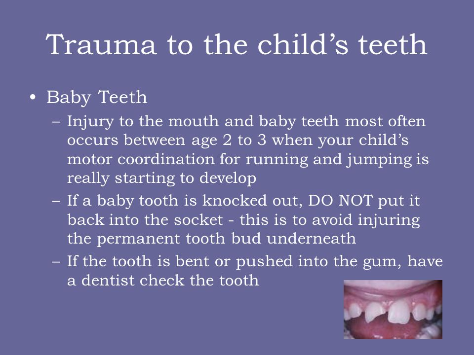 Trauma to the child's teeth