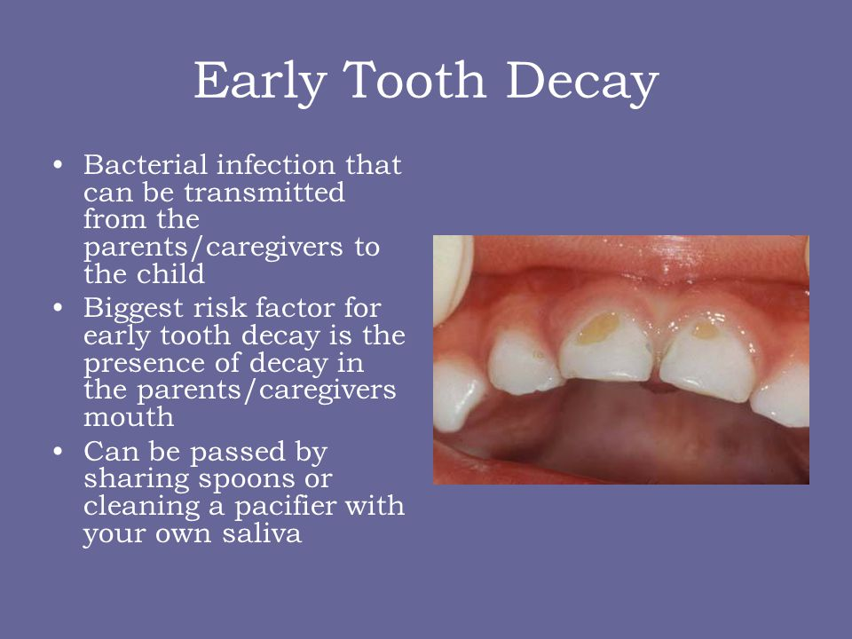Early Tooth Decay Bacterial infection that can be transmitted from the parents/caregivers to the child.