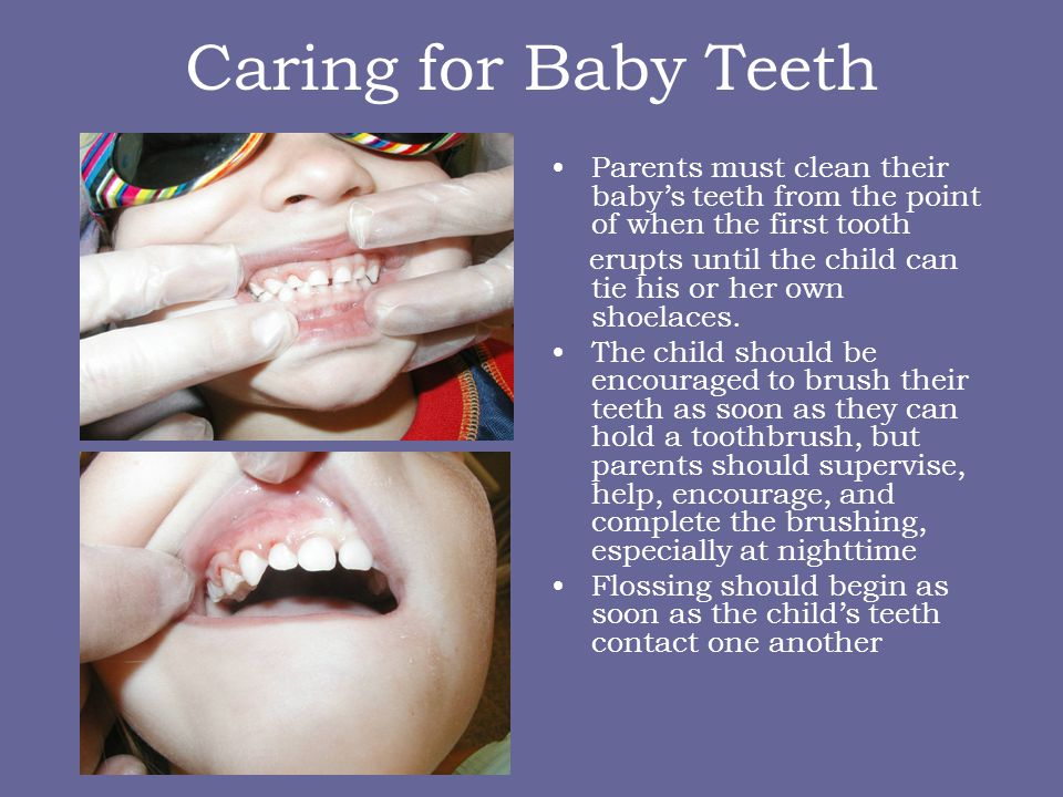 Caring for Baby Teeth Parents must clean their baby's teeth from the point of when the first tooth.