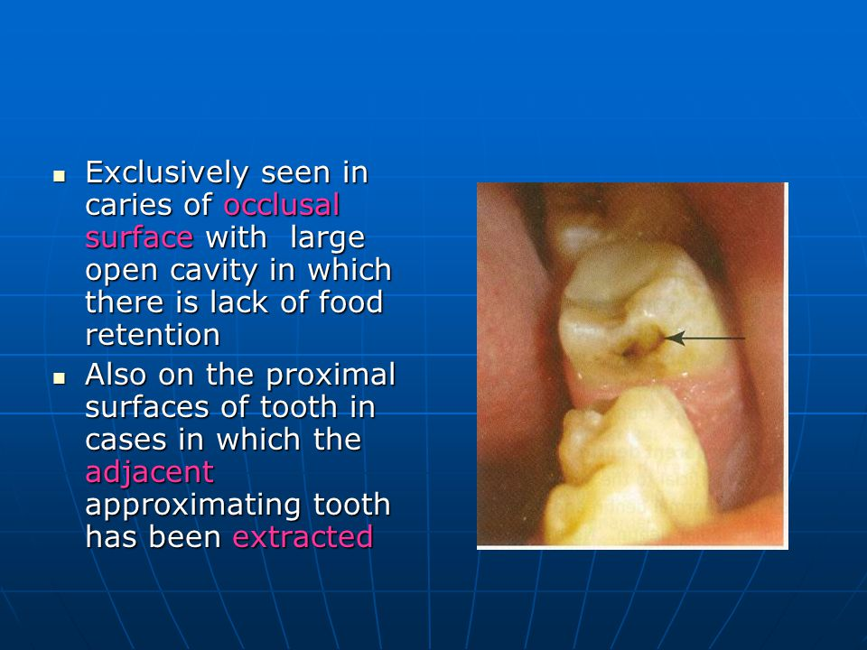 Exclusively seen in caries of occlusal surface with large open cavity in which there is lack of food retention