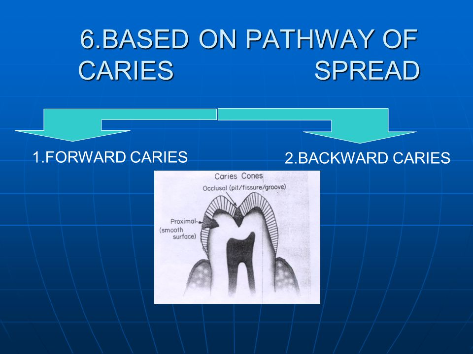 6.BASED ON PATHWAY OF CARIES SPREAD