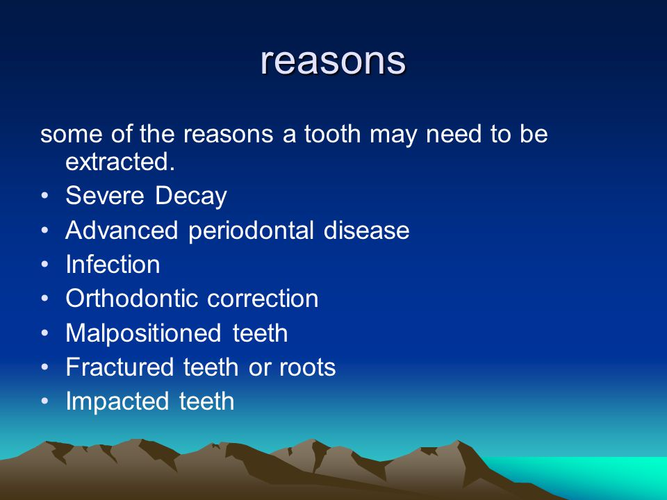 reasons some of the reasons a tooth may need to be extracted.