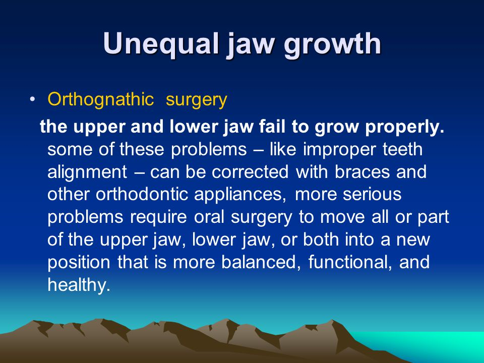 Unequal jaw growth Orthognathic surgery