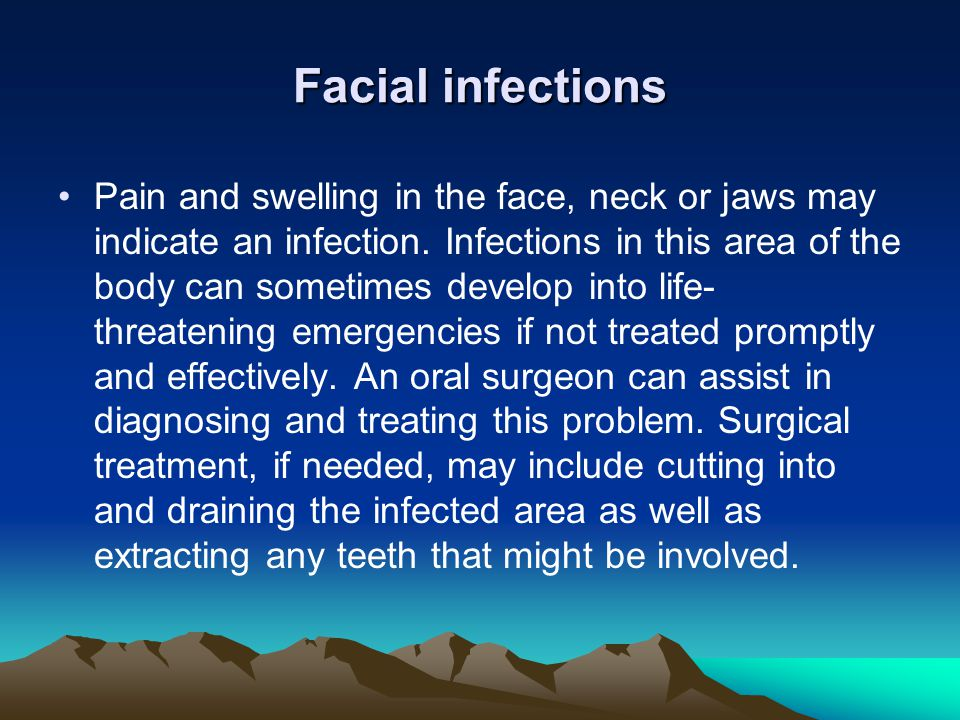 Facial infections
