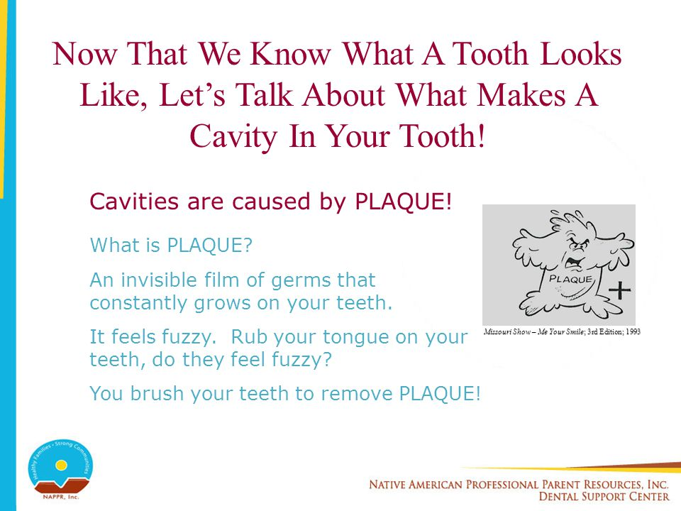 Now That We Know What A Tooth Looks Like, Let's Talk About What Makes A Cavity In Your Tooth!