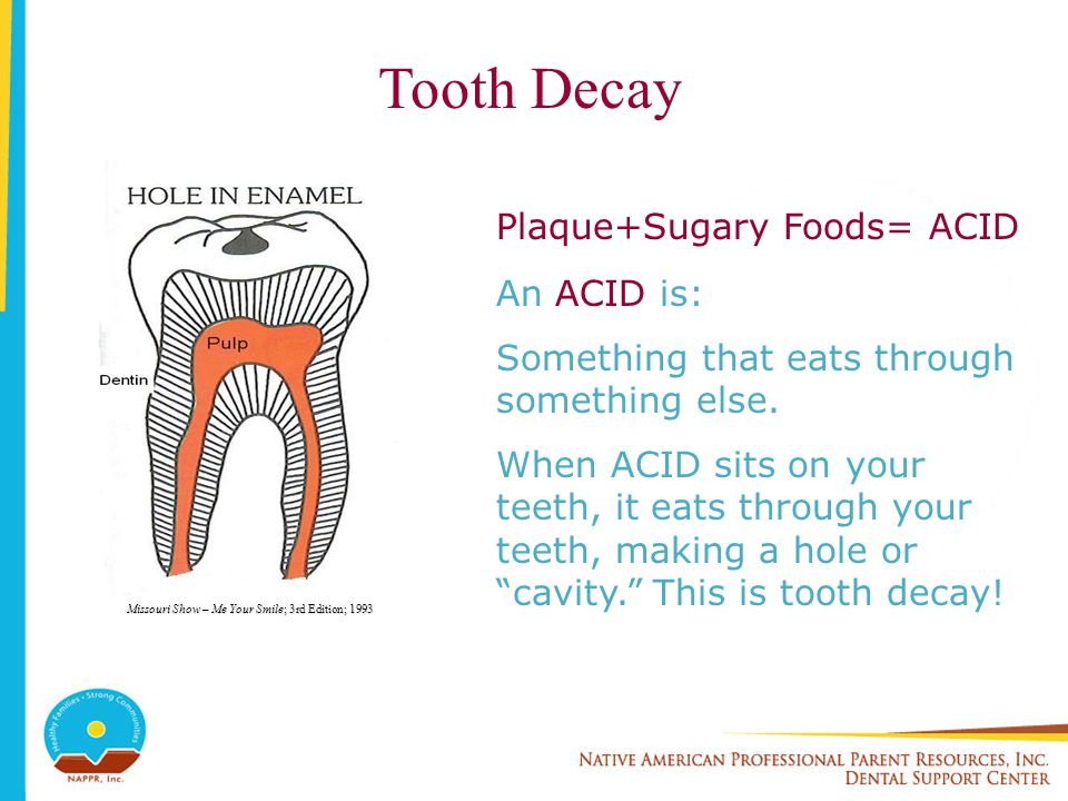 Tooth Decay Plaque+Sugary Foods= ACID An ACID is: