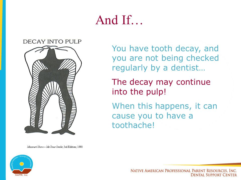 And If… You have tooth decay, and you are not being checked regularly by a dentist… The decay may continue into the pulp!