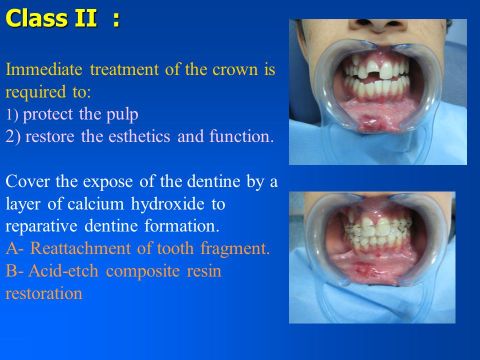 Class II : Immediate treatment of the crown is required to: