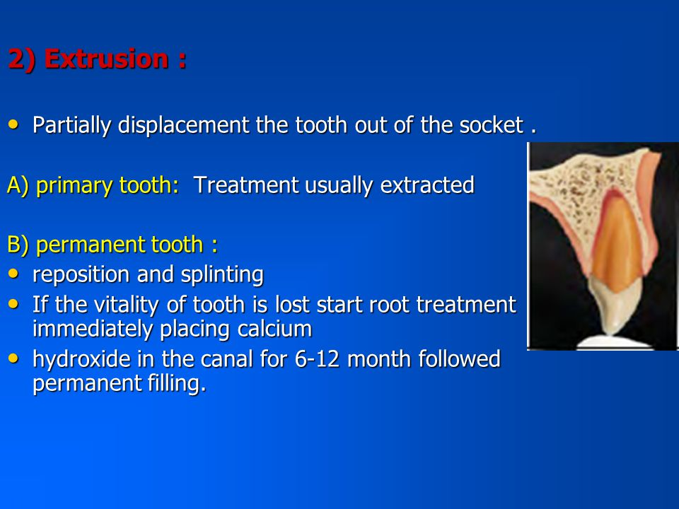 2) Extrusion : Partially displacement the tooth out of the socket .