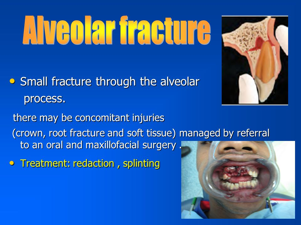 Alveolar fracture there may be concomitant injuries