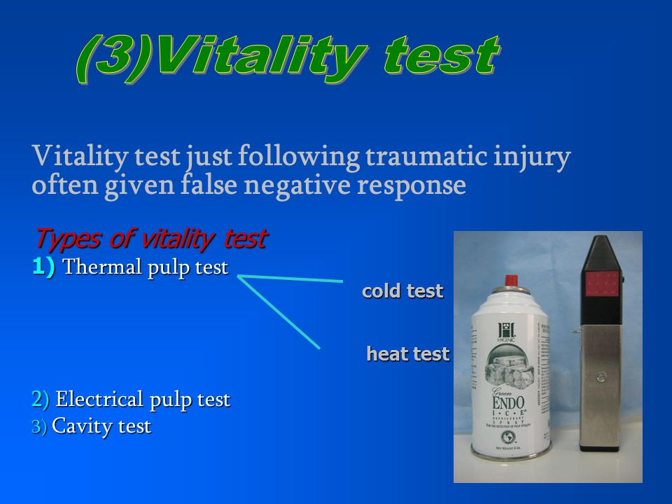 (3)Vitality test Vitality test just following traumatic injury often given false negative response.